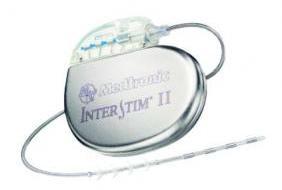 Contro-l-incontinenza-femminile-s-impiantano-speciali-pace-maker-96c768bc6bdc6a1d3dbd8a2658433367